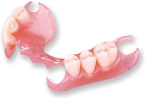 Kết quả hình ảnh cho như chậm phát triển chiều cao, cân nặng răng implant