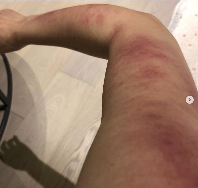 rainie yang bruised arm gua sha