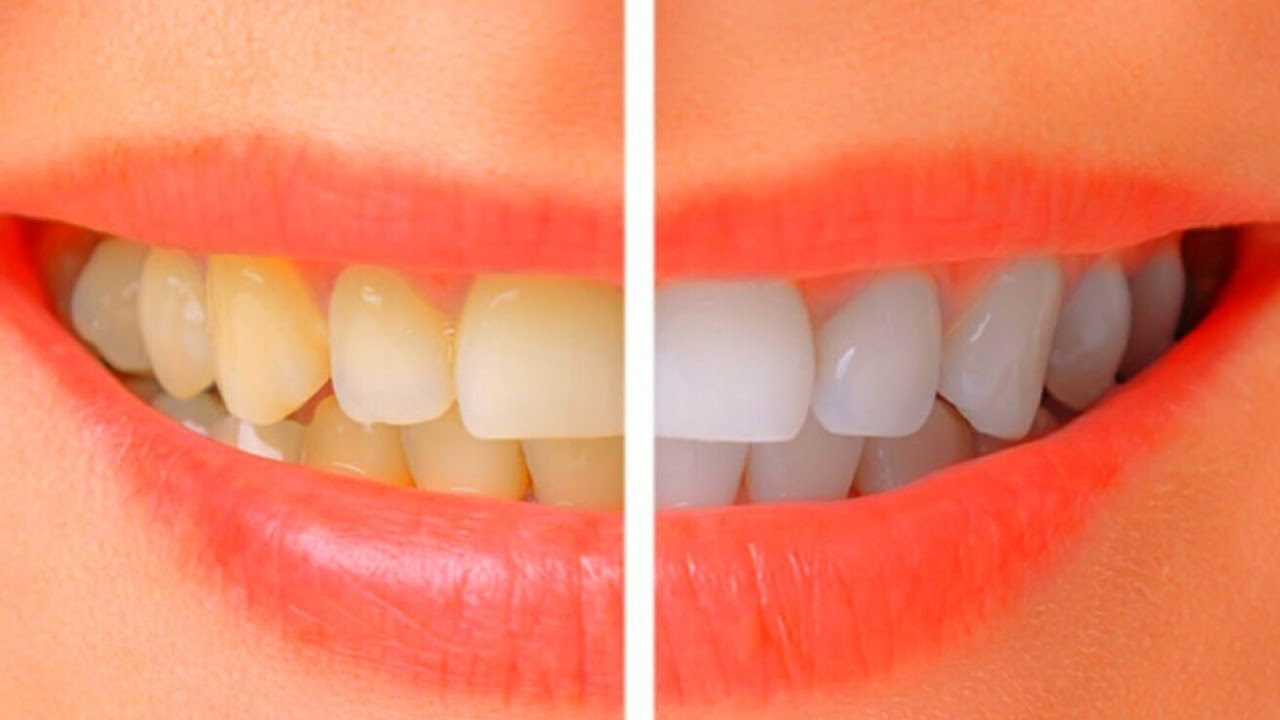 Easy Way To Whiten Teeth Naturally