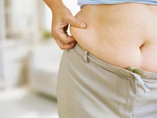 Panniculectomy - Cost, Side effects, Risk, Recovery, Reviews, Complications