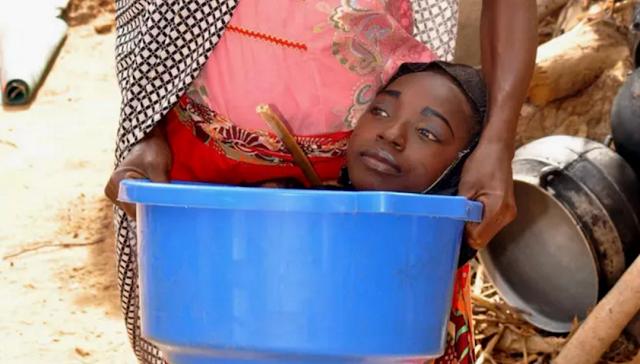 Innalillah! Gadis Tabah Yang Hidup Di Baskom Plastik Itu Kini Telah Tiada