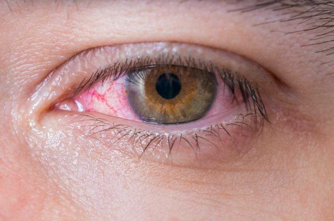 علاج الم العين. بالعلاجات المنزلية