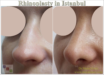 Rhinoplasty in istanbul - Rhinoplasty in Turkey - Nose job in istanbul - Rhinoplasty istanbul - Rhinoplasty Turkey -  Nasal aesthetic surgery in İstanbul - Nose aesthetic surgery in Turkey Nose job İstnbul - Nose job Turkey - Nose reshaping in İstanbul - Nose correction surgery in İstanbul - Experienced rhinoplasty doctors in Istanbul - Cheap rhinoplasty in istanbul - Nose cosmetic surgery in Turkey