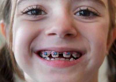 Niềng răng trẻ em có hiệu quả không?