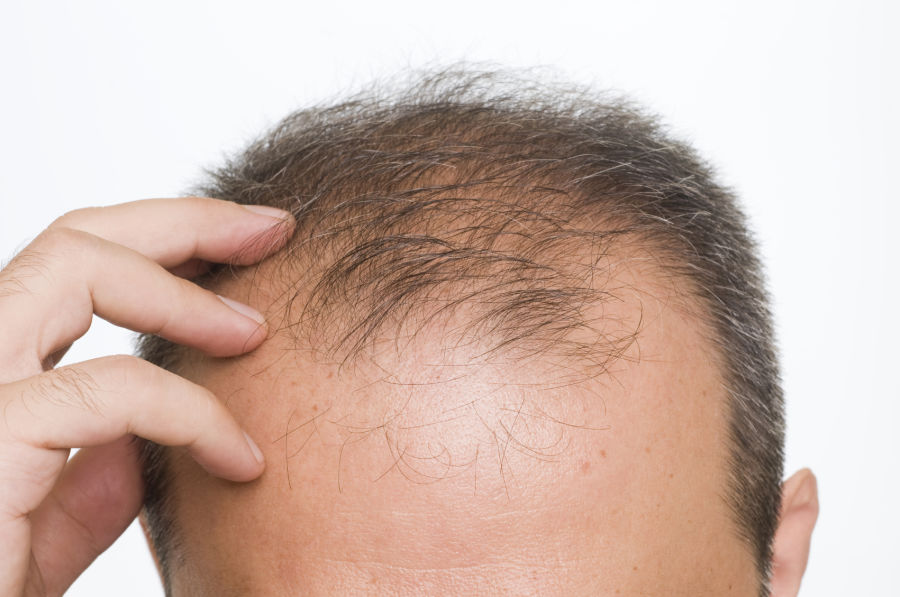 Cara Menyuburkan Rambut agar Terlihat Lebih Indah dan Lebat