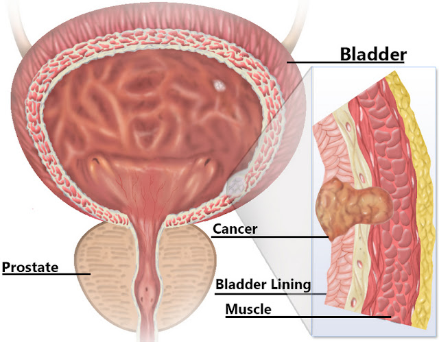 6 Bladder Cancer Symptoms And Signs Most People Ignore