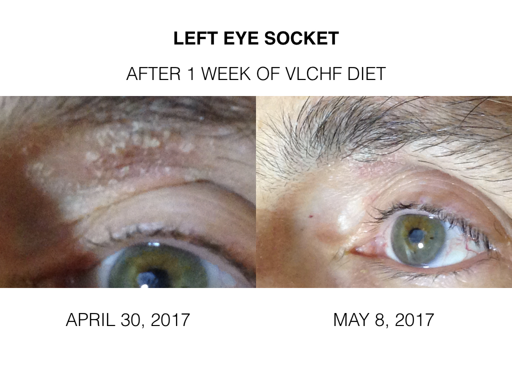 The Hypercarnivore Diet Vlchf Diet For Psoriasis Experiment Week 2