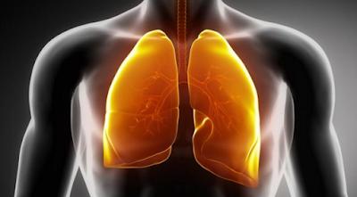 Diet Glikemik Memicu Risiko Kanker Paru