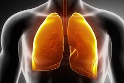 Hasil Studi, Diet Glikemik Memicu Risiko Kanker Paru