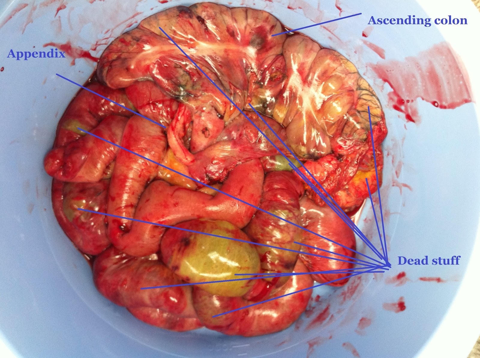 Stories From The Trauma Bay Dead Bowel