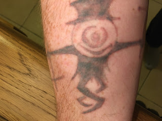 Tattoo removal healing time picosure laser