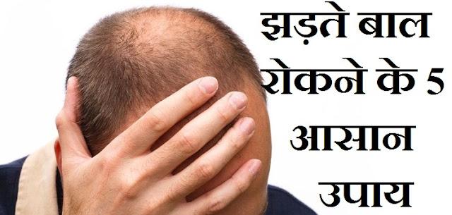 Sahaj Jan Seva Healt Tips : झड़ते बाल रोकने के 5 आसान उपाय