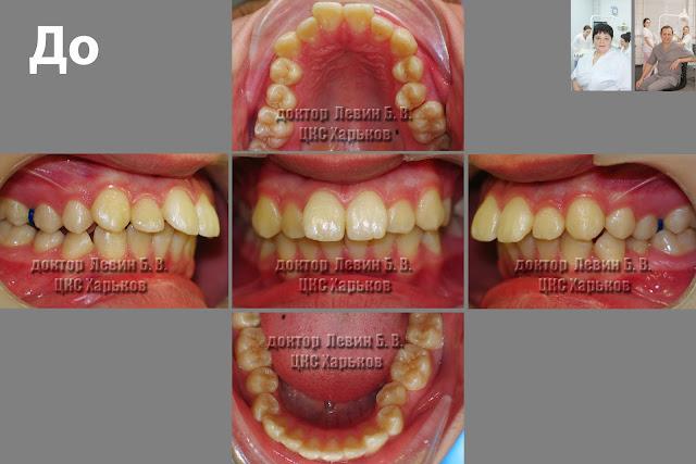 ассимметричный прикус до ортодонтического лечения
