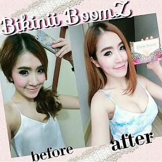 Hasil menggunakan bikinii boomz - before after bikinii boomz