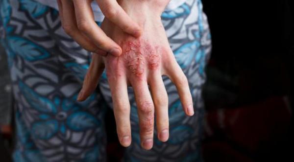 Why women have more autoimmune diseases?