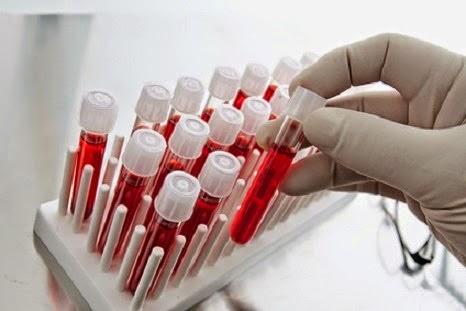 ¿Qué muestran las pruebas de sangre?