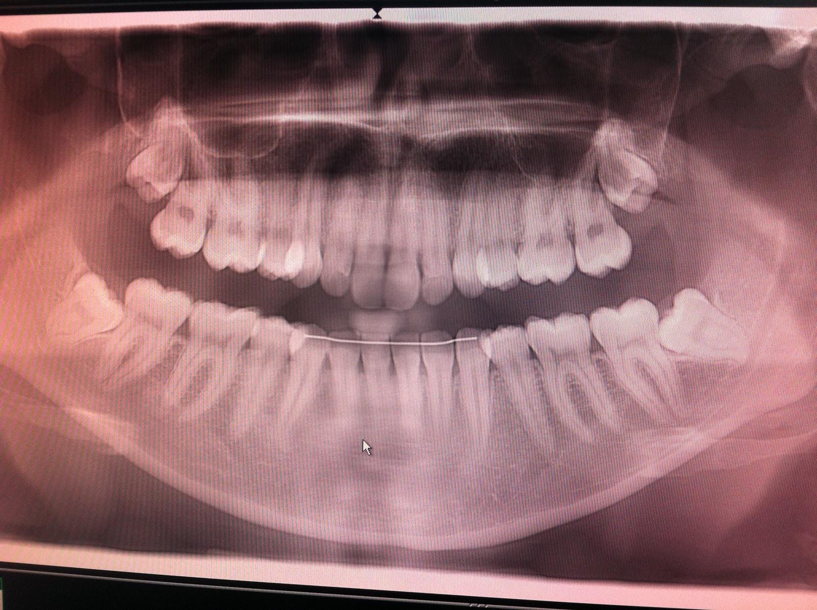tennene forann føles løse men er ikke det