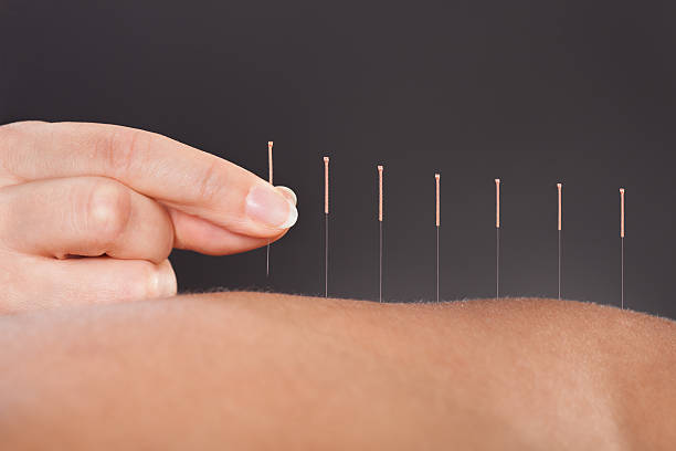 Tops Tips About Acupuncture That Anyone Can Follow