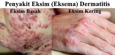 penyakit eksim basah dan kering