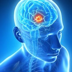 7 mitos do câncer mais comum de cérebro