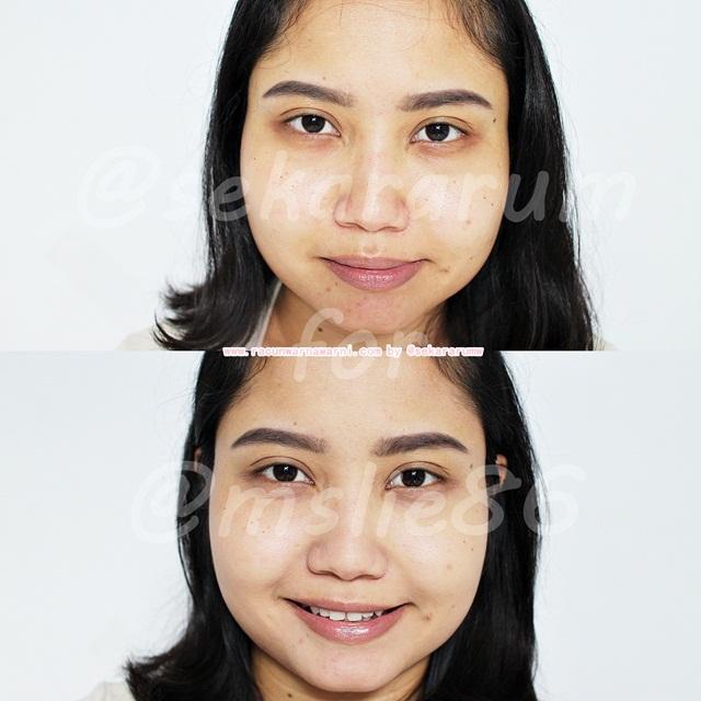 Sebelum dan Sesudah Memakai Skin79