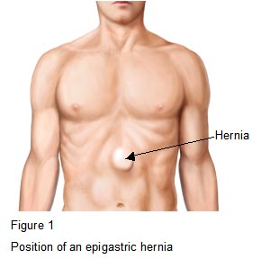 hernia and helena relationship test