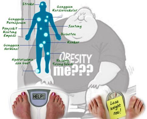 Apa Perbedaan Perut Buncit dengan Obesitas Biasa?