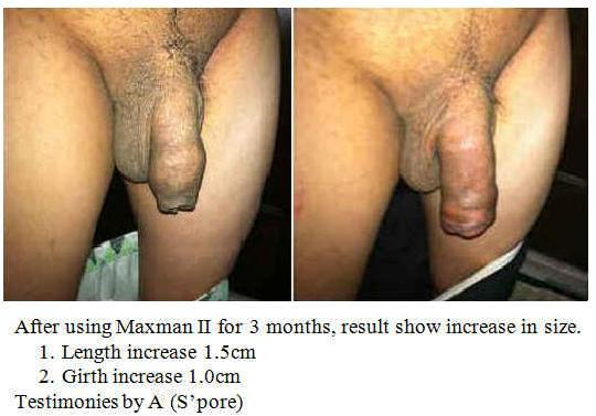 Steroids And Testicle Size