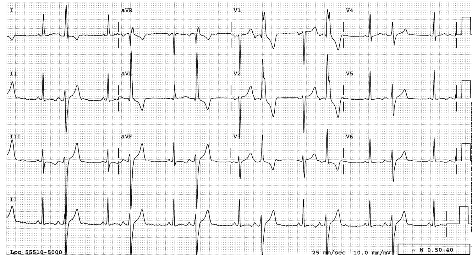 Dr Smith S Ecg Blog Pvc Or Aberrant Conduction Another Guest Post From Dr Wang