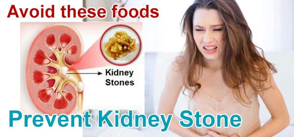 5 Precious tips to alert you to avoid Foods Causes Kidney Stones