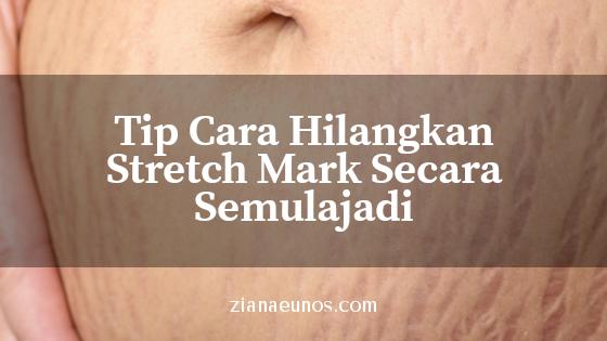 8 Tip Cara Menghilangkan Stretchmark Secara Semulajadi Dengan Cepat Dan Berkesan