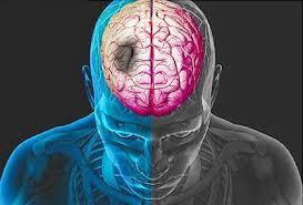 Mengobati Stroke Masih Ringan, Antisipasi Stroke Lumpuh Sebelah, Bagaimana Cara Alami Mengobati Penyakit Stroke Ringan?