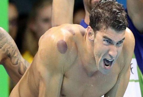 Γιατί η Ελληνική θεραπευτική αγωγή που κάνει θραύση στους Ολυμπιακούς παρουσιάζεται σαν ξένη;
