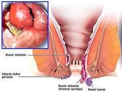 Foto Obat dokter untuk ambeien berdarah tanpa operasi