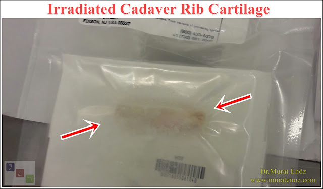 Irradiated Cadaver Rib Cartilage