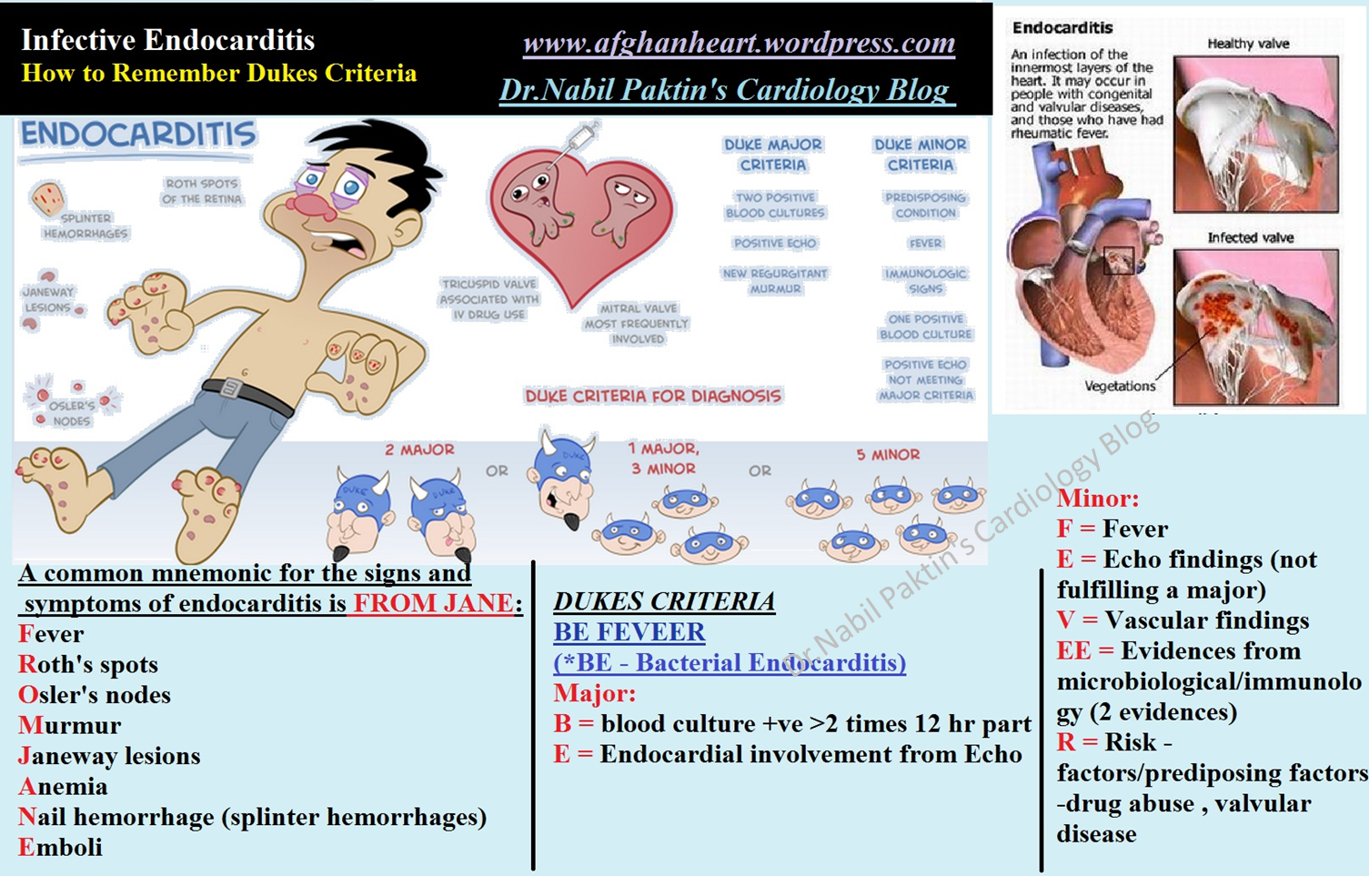Infective Endocarditis Signs And Symptoms