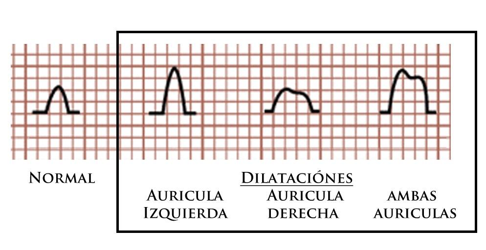 Resultado de imagen para HIPERTROFIA auricular