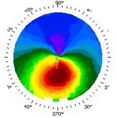 7c394d50ecbf2 Topografia de córnea mostrando um ceratocone na parte inferior