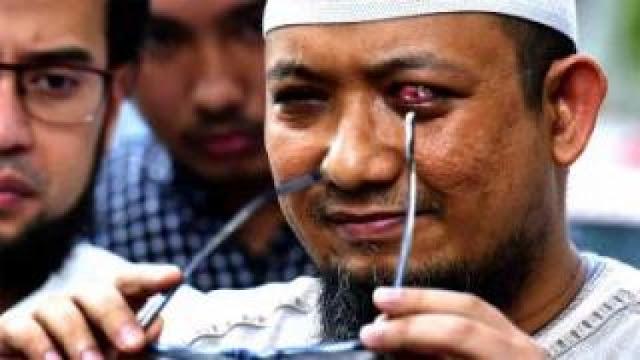 Novel Baswedan Jaksa Agung?