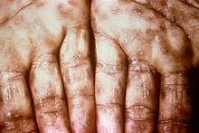 penyakit sipilis yang sudah menjalar ke tubuh
