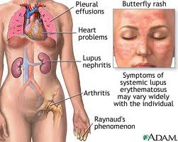 Obat Lupus Tradisional