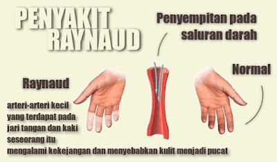 Cara Mengatasi Penyakit Raynaud Yang Alami Paling Ampuh
