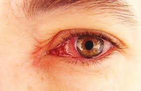 Penyakit Mata Tracoma Disebabkan Bakteri