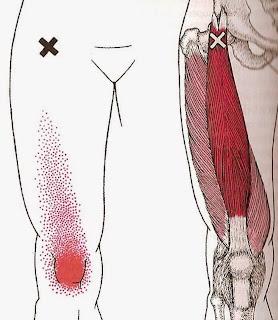 DOR NO QUADRIL Dor patela - Músculo reto femoral