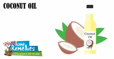 Home Remedies For Dandruff: Coconut Oil