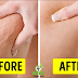Powerful 3-Ingredient Mixture Will Help You Get Rid of Cellulite, Varicose Veins, Stretch Marks and Muscle Ache