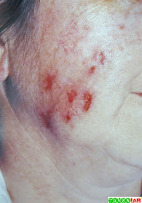 Factitial (self-induced) dermatitis, also called dermatitis   artefacta in a patient with delusion of parasitosis