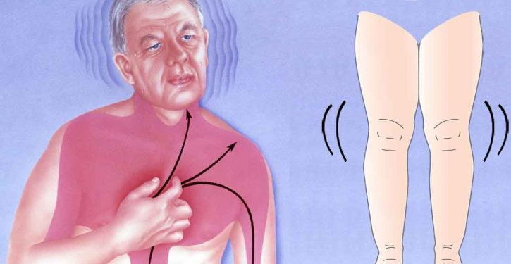 Symptoms Warn You That You Can Have A Heart Attack