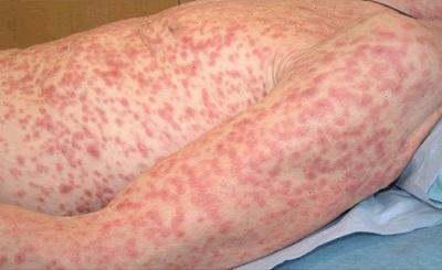 Gejala Yang Dirasakan Bagi Penderita Penyakit Sipilis