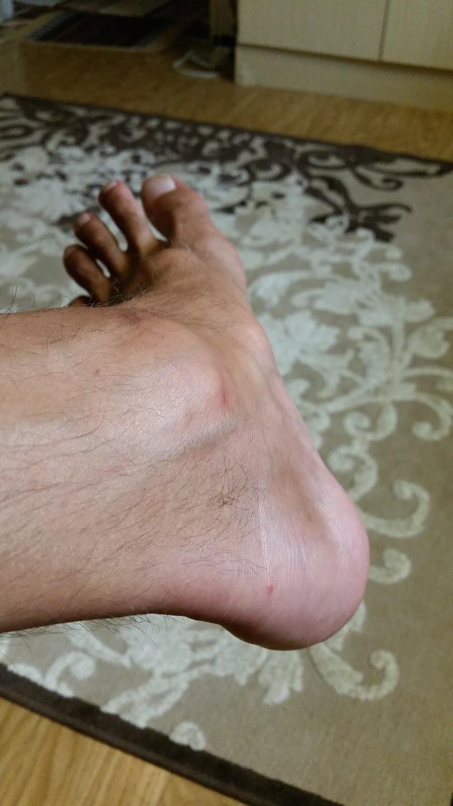 jalan turvotus leikkauksen jälkeen